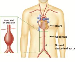 aaa-Aorta illustration.jpg